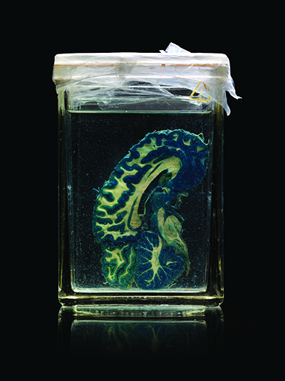 Section of brain in glass jar with fluid. Photo by Adam Voorhes.