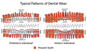 Edwards' diagram of the typical wear patterns for Prehistoric and Historic individuals, indicating how wear has changed over time.