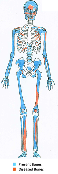 Edwards' diagram of the individual most affected by disease at the site studied, a woman from the Prehistoric Era who most likely had syphilis.